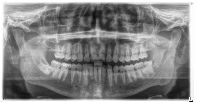 A panoramic patient's view of jaws, teeth, joints and sinus's. The upper jaw has only two molars on each side and no wisdom teeth. The lower left (has an L at the bottom) has a vertical wisdom tooth. If you look closely, you can see a darker space behind the tooth. This is bone loss because of infection. This tooth needs to come out. On the other hand, the one on the right is laying down sideways. It is fully encircled by bone. This one stays but needs to be checked every few years because it can become cystic.